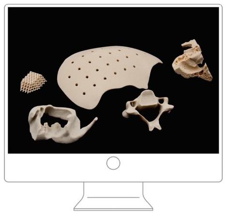 OsteoFab® Implantabl Medical Devices | Dental Implant and Bone Regeneration | Scoop.it
