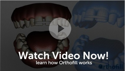 how to close a gap in your teeth | how to close a gap in your teeth | Scoop.it