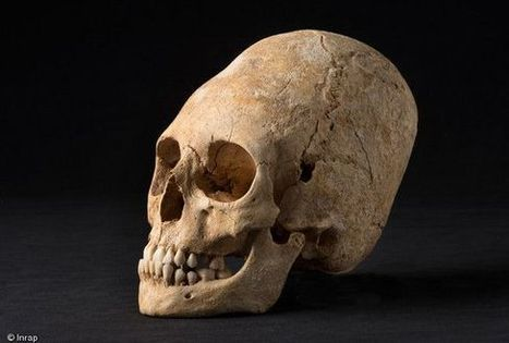 Deformed, pointy skull from Dark Ages unearthed in France | Ancient Origins of Science | Scoop.it