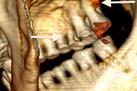 Ötzi the Iceman Needed a Dentist | Archaeology News | Scoop.it