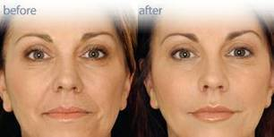 Get dazzling skin with Health & Beauty treatment in Sydney | mdcosmedicalsolutions | Scoop.it
