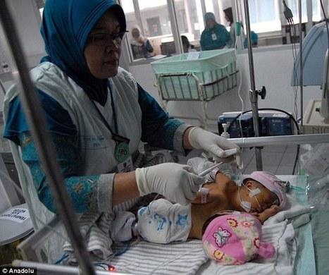 The babies with one heart: Rare conjoined twins born in Indonesia | CRAKKS | Scoop.it