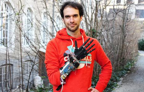 La prothèse imprimée en 3D Bionico Hand récompensée par le MIT et BNP Paribas - 3Dnatives | 3D4Doctor | Scoop.it