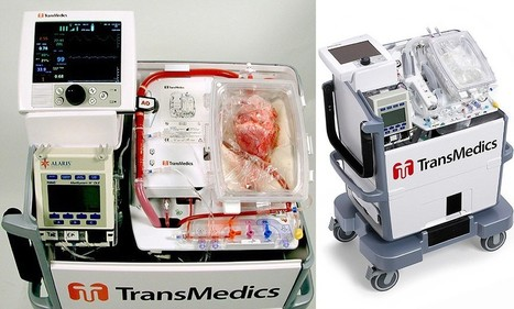 'Heart in a box': Pioneering device keeps donor organs alive OUTSIDE the body | Organ Donation & Transplant Matters Resources | Scoop.it