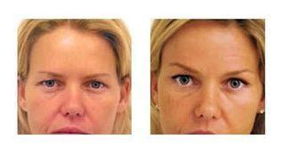 Botox Brow Lift NYC   Brow Lift with Botox   Eyebrow Lift Botox   Brow Lift Botox   Scoop.it