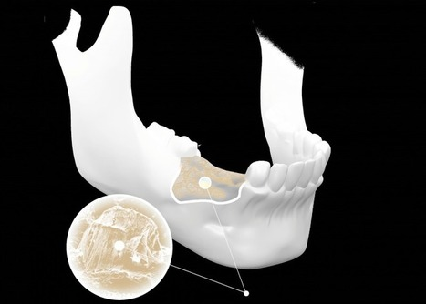 Montana State Engineers Develop Bone Graft 3D Printer | 3D Printing and Fabbing | Scoop.it