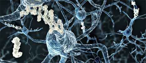 Prevention of Alzheimer's Disease - The New York Academy of Sciences | Keeping taps on the Alzheimer's Desease | Scoop.it