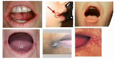 Why Regular Medication with Antibiotics Does Not Work for Angular Cheilitis | Health Tips | Health Tips | Scoop.it