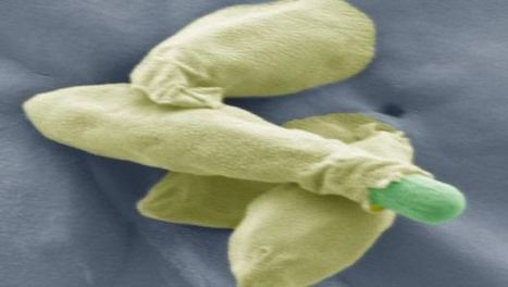 Study Provides New Insights Into Clostridium Spores   Institute of Food Research News   Scoop.it