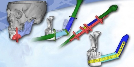 How 3D Systems' Medical Modeling Is Changing the Operating Room for the Better   tecnologia s sustentabilidade   Scoop.it