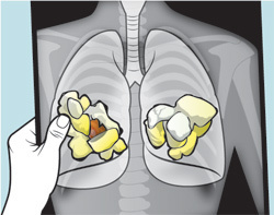 Popcorn Lung – What is it and Can You Get it Using Ecigarettes? | E-Cigarette News | Scoop.it