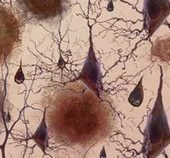 Alzheimer's Diagnostic Tests Inch Forward, but Treatments Are Still Lacking | Social Neuroscience Advances | Scoop.it
