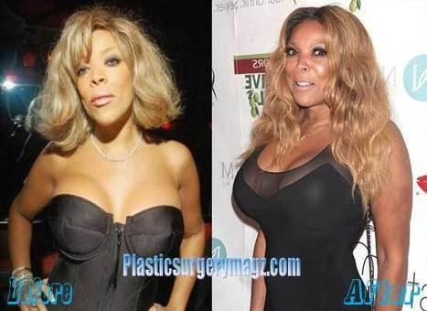 Wendy Williams Plastic Surgery | Celebrity Plastic Surgery News | Scoop.it