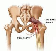 Self healing tip to recover from sciatica pain | sciatica relief | Scoop.it