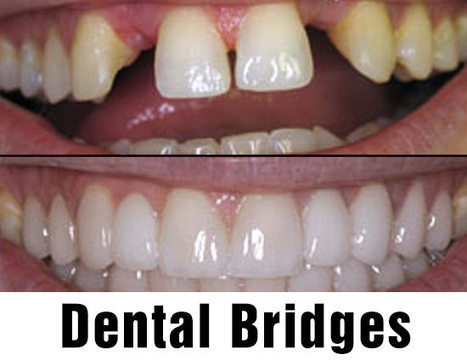 Cosmetic Dentistry in Alderley Edge Cheshire | dental surgeries cheshire | Scoop.it