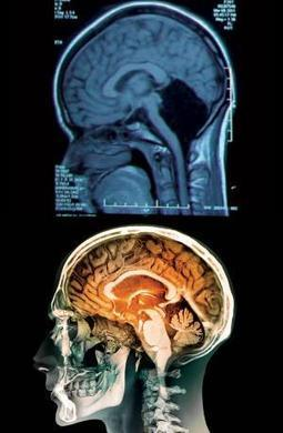 Woman of 24 found to have no cerebellum in her brain | Amazing Science | Scoop.it
