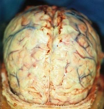 Twitter / IlindelatorreMD: Meningitis (inflamación de ... | Neisseria meningitidis | Scoop.it