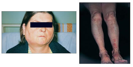 Round 27: Sjögren's Syndrome: Clinical picture, adverse outcome and B-cell neoplasia | CME-CPD | Scoop.it