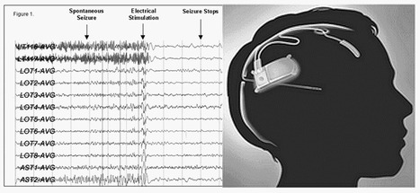 NeuroPace: treatment of medically refractory partial epilepsy | Medical Engineering = MEDINEERING | Scoop.it