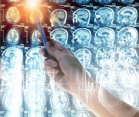 Brain Tumors Inherited Through Newly Discovered Gene Mutation | Pan Computers | Scoop.it
