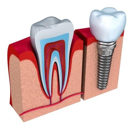 Understanding Dental Implants: Installation and Benefits Explained | SimmondsDentalCenter | Scoop.it