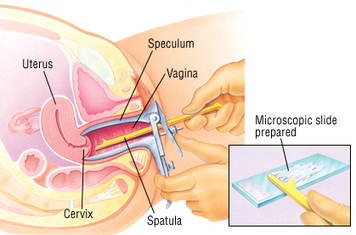 What Is The Significance Of Vaginitis? | Health | Scoop.it