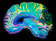 Connecting Autistic Behavior to Brain Function | Abnormal Psychology | Scoop.it