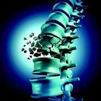 Amgen/UCB monoclonal antibody Romosozumabreduced spine fractures, increased bone mineral density | Osteoporosis New drugs Review | Scoop.it