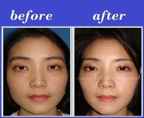 Jaw Reduction Botox | Bangkok Aesthetic Surgery Center | Bangkok Aesthetic Surgery | Scoop.it