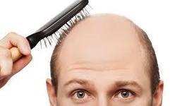 Boons and Banes of Hair Loss Treatments - Online Pharmacy Blog, Health Blog | AllDayChemist | Alldaychemist | Scoop.it