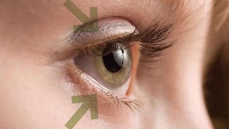 Malposiciones palpebrales | SALUD OCULAR: GAFA TÉCNICA, OJO SECO Y DEPORTE GRADUADA | Scoop.it