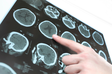 Protein and Parkinson's Disease: Cause and Prevention | General Health News | Scoop.it