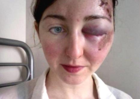 The face of cycling on Edinburgh's broken roads - Transport - Scotsman.com | Today's Edinburgh News | Scoop.it