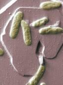 Aumenta un súper germen resistente a los fármacos en los hospitales del sureste de EE. UU.: MedlinePlus | Salud Publica | Scoop.it