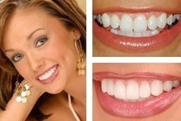 Implant Dentures in North Carolin | Dental Crowns Charlotte | Scoop.it