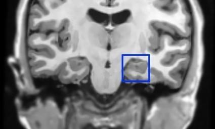 Studie: Erinnerungen können im Schlaf gezielt manipuliert werden   Weiterbildung   Scoop.it