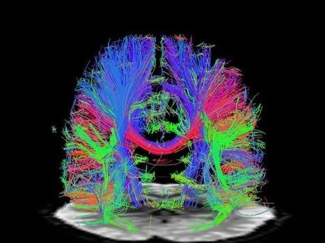 15 Emerging Neurotechnologies That Will Change The World - Business insider | Futurewaves | Scoop.it
