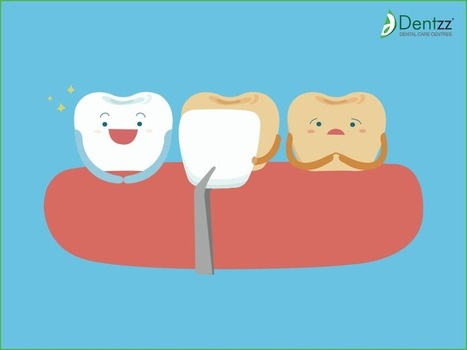 Dentzz Dental: Why Dentzz Dental Clinic Is Preferred By People? | Some Must Reads | Scoop.it
