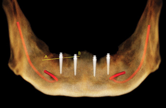 Do we need a radiographic guide? A review of CBCT visualization and treatment planning for narrow-diameter implant overdentures | Dental Implants | Scoop.it
