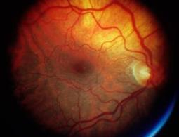 Stem-cell treatment restores sight to blind man - health - 20 May 2013 - New Scientist | leapmind | Scoop.it