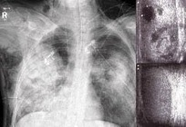 Industrial Report: Pneumonia Diagnostics & Technologies Market 2013 - 2019 : Now at Market-Research- Reports.biz ~ All Business Research Reports   doctorN   Scoop.it