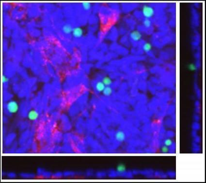 Screening Tool Could Speed Ovarian Cancer Drug Development | Biomedical Beat | Scoop.it