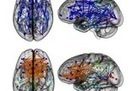 How Men's Brains Are Wired Differently Than Women's | The Subjective World: Consciousness&Mind&Thinking | Scoop.it