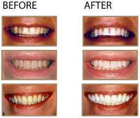 تبييض الاسنان | Anime | Scoop.it