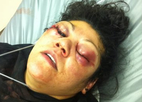 """Woman's Eyes """"Blown to Pieces"""" by Cop With Gunpowder Powered Pepper Gun 