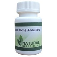 Natural Herbs For Granuloma Annulare | Natural Herbs Clinic | Scoop.it