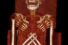 Ancient Egyptian Mummy Suffered Rare and Painful Disease | Ancient Egypt and Nubia | Scoop.it