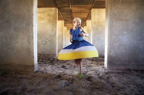 Fotogalería: Una casa para los albinos | BioN | Scoop.it