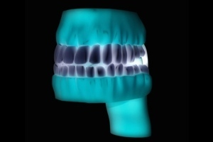 "New At The Dentist: 3D Printing ""Dental Crowns ... 
