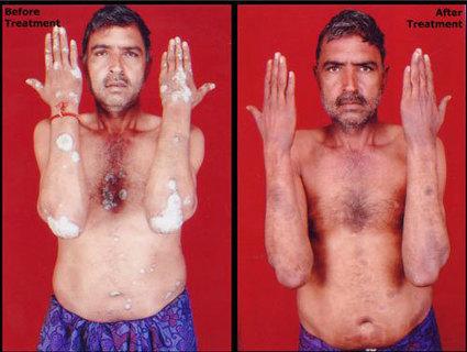 JDM Ayurvedic,Psoriasis,Psoriasis Cure | Psoriasis | Scoop.it